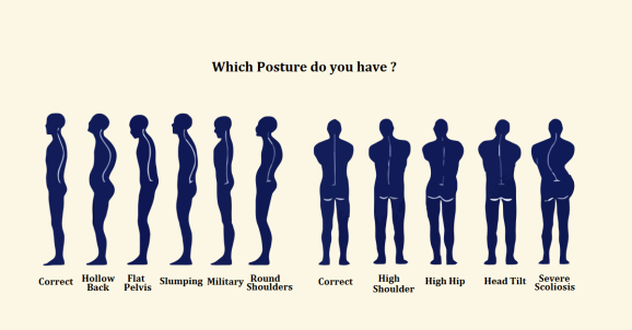 posture-chart